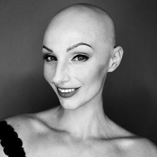 Felicia Alopecia