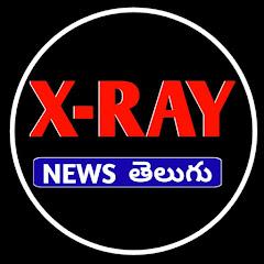 X Ray News Telugu