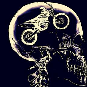 X-Ray BiKes